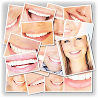 Smile Gallery Icon